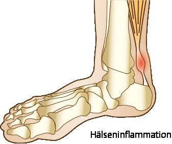 Hälseneinflammation eller Achillestenidopati camp pro