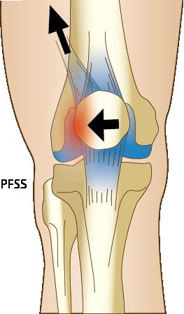 PFSS Patellofemoralt smärtsyndrom bild av knä