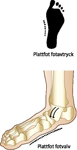 plattfot symptom och behandling camp pro