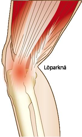 Löparknä, Iliotibialbandssyndrom symptom och behandling camp pro